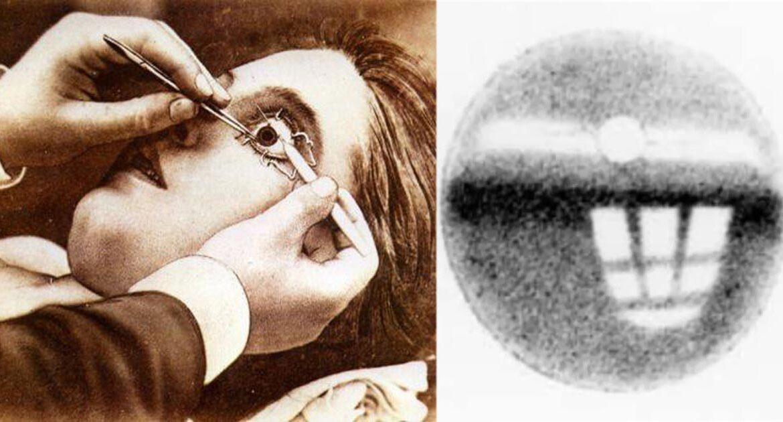 Optografia forense. L'ultima immagine negli occhi della vittima